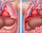 Tratamento fetal (intraútero) pode aumentar a sobrevida de fetos com hérnia diafragmática congênita