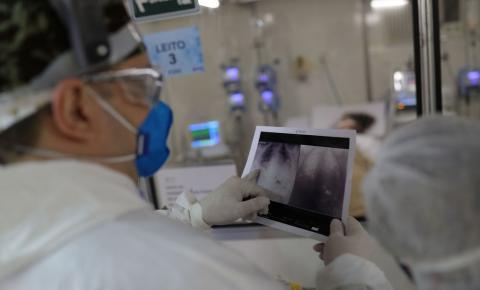 Saúde atualiza números da pandemia: Brasil tem 363 novos óbitos