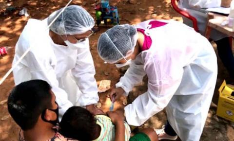 Saúde realiza vacinação em crianças indígenas venezuelanas em Araguaína