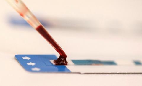 Pesquisadores desenvolvem nova abordagem para combater vírus da aids